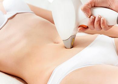 Кожата на стомаха се третира с лазер