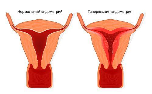 Endometriumkudoksen lisääntymiskuvio